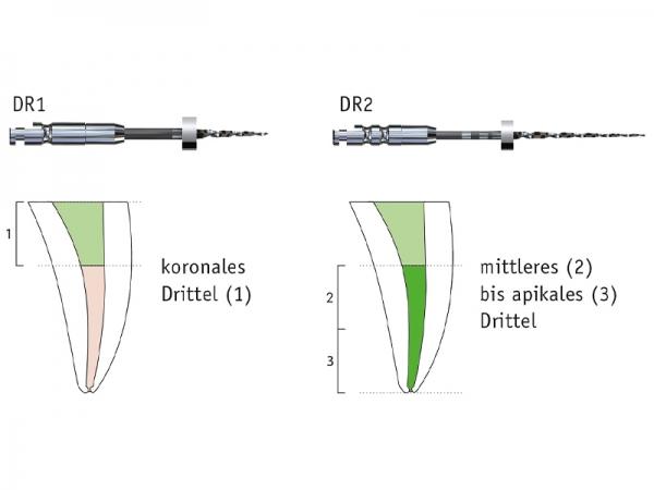 FKG D-Race Revisionsinstrumente (steril/unsteril)